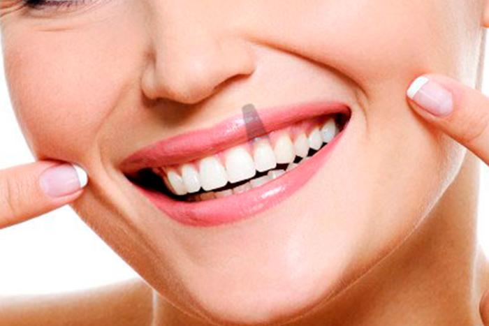 Tratamientos | Dental Gutierrez Algeciras